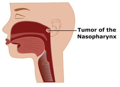 Biết rõ dấu hiệu ung thư vòm họng giai đoạn đầu, cơ hội sống sót lên tới 72%: Đâu là cách phòng ngừa? - Ảnh 1.
