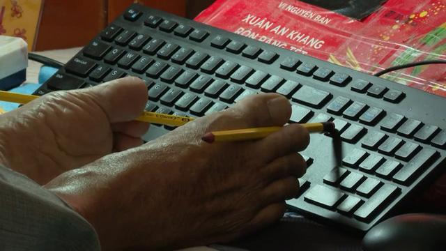 Thầy giáo Nguyễn Ngọc Ký trong tuổi thơ: 11 năm chạy thận, tập gõ phím bằng ngón chân để sáng tác văn học - Ảnh 1.