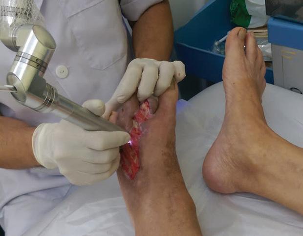 Bác sĩ cảnh báo 4 điều kiêng kỵ khi ngâm chân gây nguy hiểm tính mạng, thoải mái mấy cũng dừng ngay! - Ảnh 1.