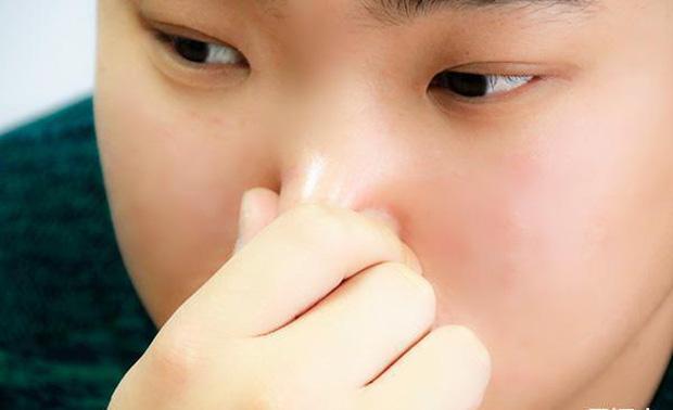 Người gan kém thường có 4 biểu hiện bất thường ở quanh miệng, nếu bạn không có thì xin chúc mừng - Ảnh 4.