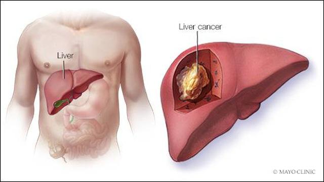 Đây là 4 lý do khiến bạn dễ bị ung thư gan: Cách phòng ngừa hiệu quả thật sự không khó - Ảnh 4.