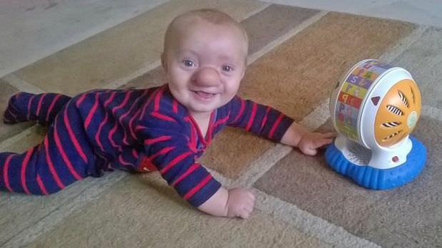 """Cậu bé Pinocchio đời thực"""" sinh ra với chiếc mũi to dị dạng khiến bố mẹ cũng sốc, gây bất ngờ với diện mạo sau ít năm - Ảnh 3."""