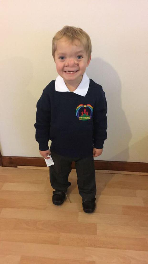 """Cậu bé Pinocchio đời thực"""" sinh ra với chiếc mũi to dị dạng khiến bố mẹ cũng sốc, gây bất ngờ với diện mạo sau ít năm - Ảnh 9."""