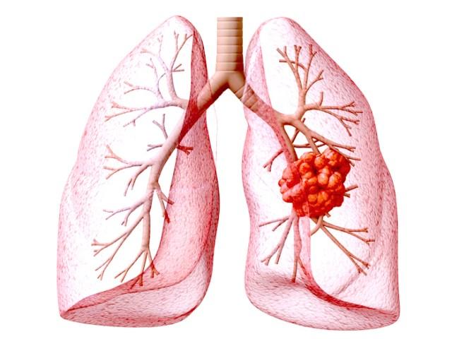 BS tiết lộ: Ung thư phổi giai đoạn cuối vẫn có thể sống thêm 10 năm nhờ 2 giải pháp mới - Ảnh 1.