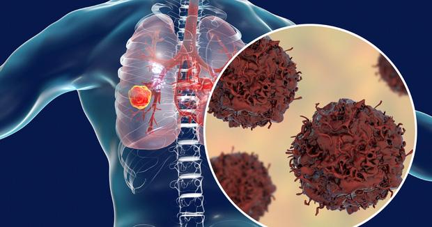 15 bộ phận trên cơ thể dễ bị ung thư nhất, người trẻ hãy cảnh giác - Ảnh 1.