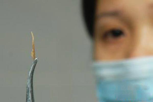 Người đàn ông 45 tuổi tử vong sau 3 ngày bị hóc xương cá ở cổ họng, bác sĩ chỉ ra 3 bước có thể cứu sống bạn khi gặp trường hợp tương tự - Ảnh 6.
