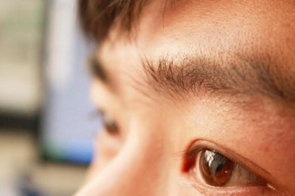 Người đàn ông bị đột quỵ mắt, mất thị giác đột ngột, bác sĩ cảnh báo: Người trẻ nên làm việc trước máy tính và nghỉ ngơi điều độ nếu không muốn bị mù! - Ảnh 3.