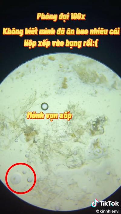 Sự thật rùng mình khi soi hộp xốp đựng đồ ăn dưới kính hiển vi: Chuyên gia cảnh báo dùng nhiều coi chừng gây vô sinh, dậy thì sớm và ung thư - Ảnh 1.