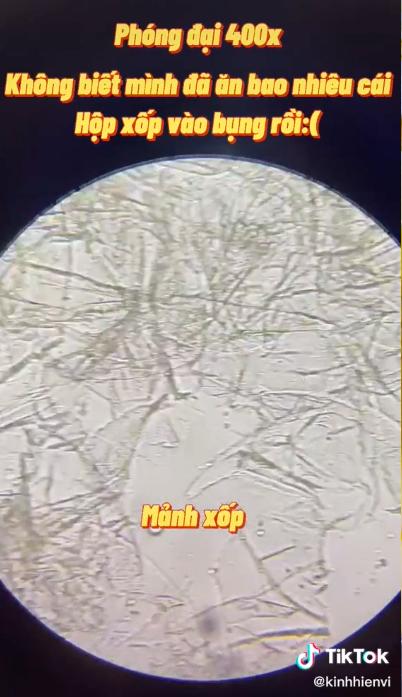 Sự thật rùng mình khi soi hộp xốp đựng đồ ăn dưới kính hiển vi: Chuyên gia cảnh báo dùng nhiều coi chừng gây vô sinh, dậy thì sớm và ung thư - Ảnh 2.