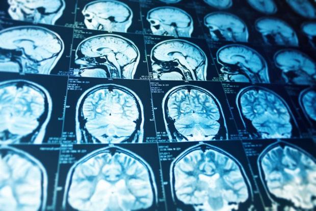 Nghiên cứu của Mỹ: Mỗi ngày xem TV thêm 1 giờ, não của bạn sẽ mất đi 0.5% chất xám - Ảnh 2.