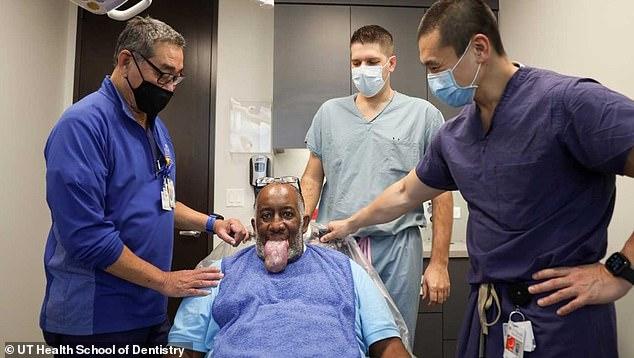 Kinh hoàng với triệu chứng lưỡi COVID: Lưỡi sưng to khổng lồ, người bệnh không thể ăn và nói - Ảnh 1.