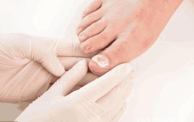 Bất kể là nam hay nữ, 4 triệu chứng bất thường xuất hiện trên bàn chân cho thấy bệnh tiểu đường đang nhắm tới bạn - Ảnh 3.
