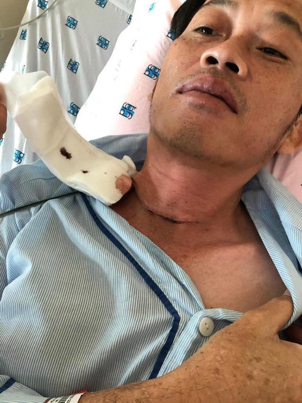NÓNG: Nghệ sĩ Hoài Linh phẫu thuật vì bị u ác tuyến giáp cách đây vài tháng - Ảnh 1.