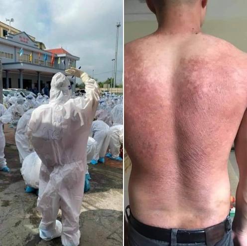 Hình ảnh chân thực đến quặn lòng về các y bác sĩ từ tâm dịch COVID-19: Làm việc suốt 20 giờ không nghỉ, lưng đẫm mồ hôi, bỏng rát vì mặc đồ bảo hộ giữa thời tiết khắc nghiệt  - Ảnh 2.