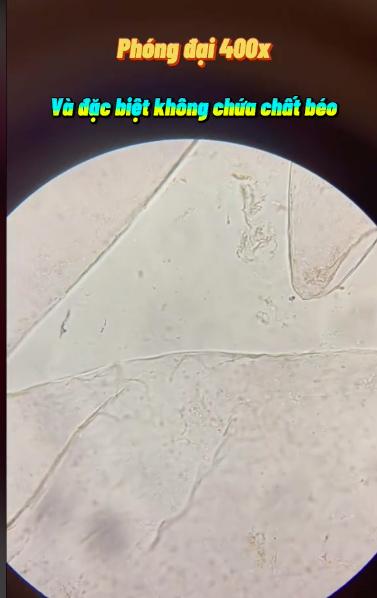 Kết quả bất ngờ khi soi quả mận dưới kính hiển vi và 5 đối tượng dù thèm cũng không nên ăn mận kẻo rước bệnh vào người - Ảnh 3.