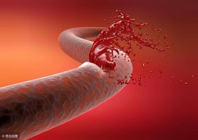 Mạch máu có thể đầy rác ở tuổi 20: Cảnh giác với 5 dấu hiệu tắc nghẽn mạch máu này, nếu thấy cần xử lý ngay - Ảnh 1.