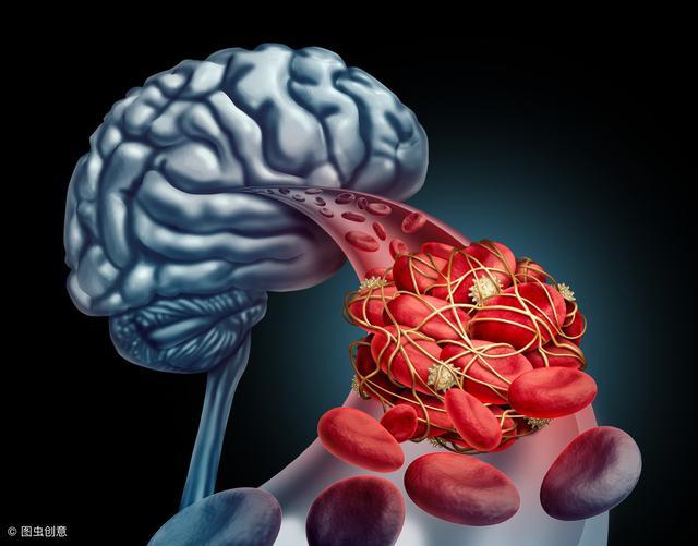 Mạch máu có thể đầy rác ở tuổi 20: Cảnh giác với 5 dấu hiệu tắc nghẽn mạch máu này, nếu thấy cần xử lý ngay - Ảnh 2.