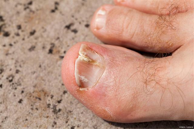 Người tuổi thọ ngắn thường có 4 dấu hiệu nhận biết trên bàn chân, dù chỉ sở hữu 1 điểm bạn cũng không được coi thường - Ảnh 2.