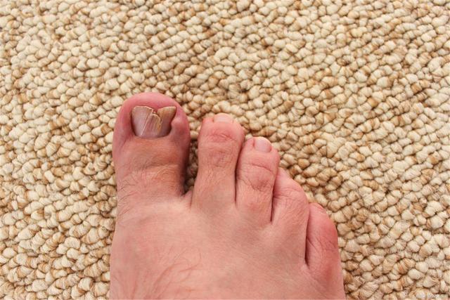 Bàn chân là bộ não thứ 2 của cơ thể: Nếu có 4 sự thay đổi này ở chân, cảnh báo gan bị tổn thương hoặc đã tiến triển thành ung thư - Ảnh 3.