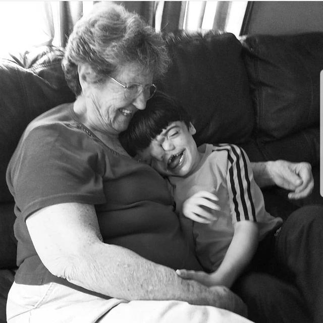 Bé trai sinh ra với 2 khuôn mặt dính liền nhau, bác sĩ khẳng định khó sống sót nhưng diện mạo và cuộc sống sau 17 năm gây kinh ngạc - Ảnh 8.