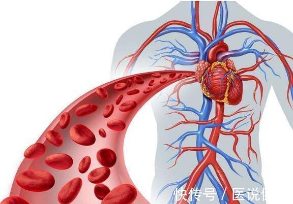 3 nhóm thực phẩm là thủ phạm hàng đầu gây bệnh tim mạch, hại mạch máu não, rất tiếc nhiều người vẫn hay ăn - Ảnh 1.