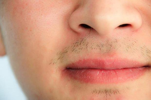 2 thời điểm nam giới không nên cạo râu, nếu không càng cạo râu càng mọc nhanh, thậm chí có thể gây nhiễm trùng, lở loét da mặt - Ảnh 1.