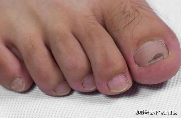 4 biểu hiện trên bàn chân cho thấy tế bào ung thư đã nhắm tới bạn, nếu có thì đi khám nhanh còn kịp - Ảnh 2.
