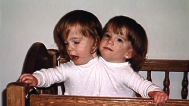 Bị chẩn đoán khó sống sót, cặp chị em sinh đôi dính liền chỉ có 2 chân khiến thế giới kinh ngạc với cuộc sống và diện mạo sau hơn 30 năm - Ảnh 2.