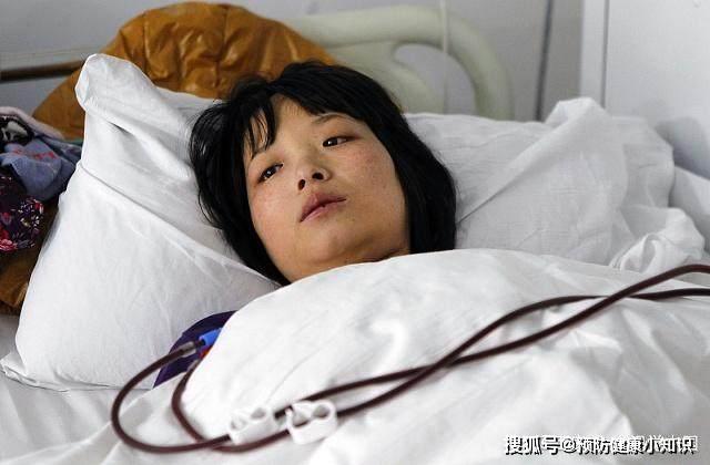 Người phụ nữ 30 tuổi qua đời vì ung thư gan, nguyên nhân xuất phát từ món ăn đặc sản đang được rất nhiều người trẻ ưa chuộng - Ảnh 1.