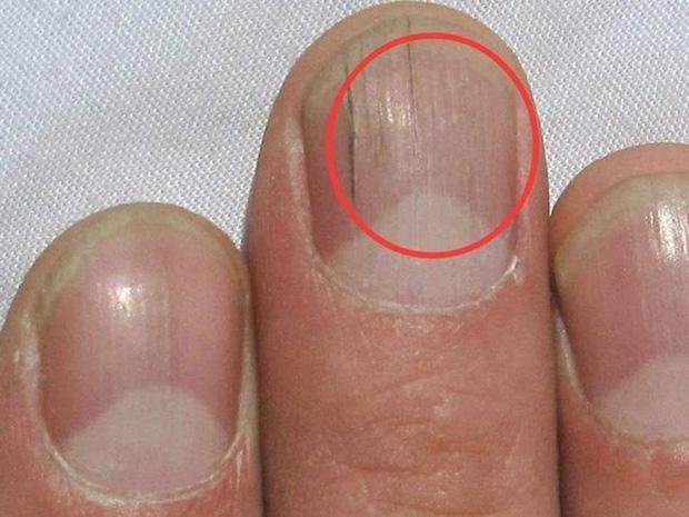 Móng tay xuất hiện các đường kẻ dọc bất thường, coi chừng là dấu hiệu của bệnh tật, bạn nên đi khám nhanh còn kịp - Ảnh 1.