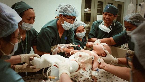 Trúc Nhi - Diệu Nhi sau 1 năm phẫu thuật tách rời: 2 thiên thần đáng yêu, đã tự sinh hoạt như bao em nhỏ khác - Ảnh 1.