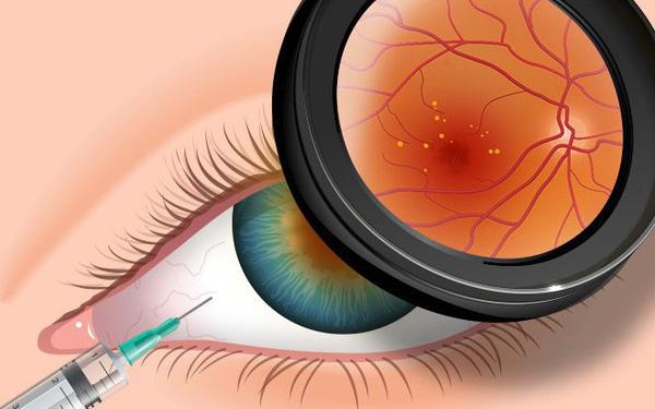 3 biểu hiện bất thường ở đôi mắt ngầm cảnh báo nguy cơ mắc bệnh tiểu đường rất cao mà bạn cần chú ý - Ảnh 1.