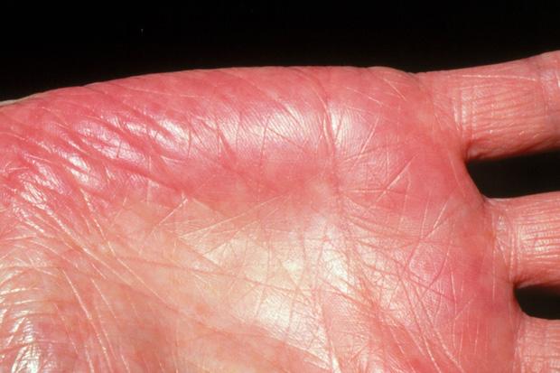 Người gan kém thường có 3 thay đổi bất thường ở bàn tay, đi khám ngay vì rất dễ là dấu hiệu của ung thư gan - Ảnh 2.