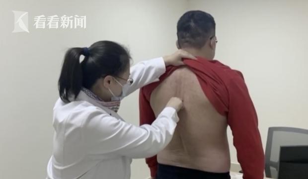Chàng trai 32 tuổi cột sống bị bẻ gập bắt nguồn từ một tư thế quen thuộc của nhiều người, nếu nặng có thể phải cắt cụt chân - Ảnh 1.