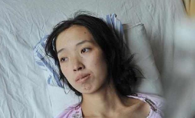 Người phụ nữ 33 tuổi mắc bệnh ung thư dạ dày vì duy trì 1 thói quen ăn sướng miệng, hại thân suốt 13 năm, đáng lo là nhiều người cũng mắc phải - Ảnh 1.