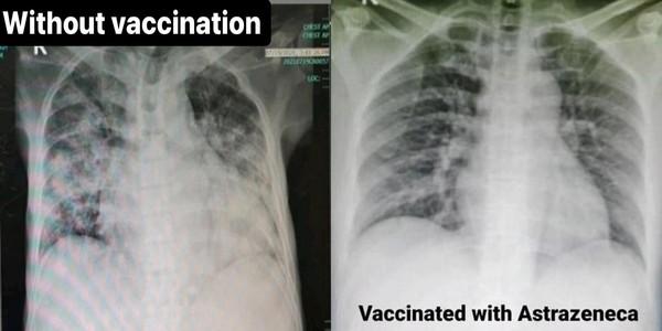 4 bức ảnh chụp phổi của bệnh nhân Covid-19 đã tiêm các loại vắc xin khác nhau và không tiêm: Kết quả gây sốc! - Ảnh 1.