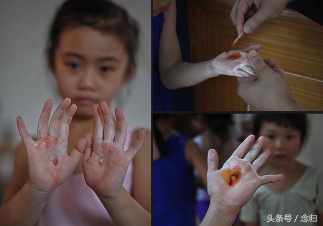 Giấc mơ vô địch Olympic của những đứa trẻ ở lò đào tạo thể thao Trung Quốc: Đánh đổi tuổi thơ bằng máu, mồ hôi và nước mắt  - Ảnh 7.