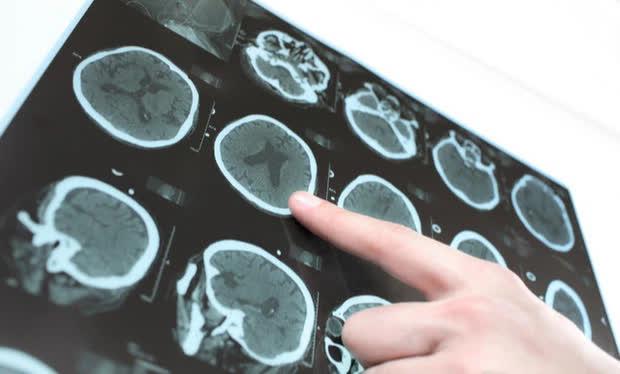 Người phụ nữ 52 tuổi ngất đột ngột, tử vong do nhồi máu não: Bác sĩ khuyên ai cũng phải hạn chế điều này sau bữa ăn để tránh hậu quả đáng tiếc - Ảnh 1.