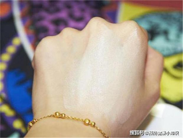 Người sở hữu lá gan khỏe mạnh sẽ có 5 biểu hiện trên bàn tay, nếu bạn có đủ cả thì xin chúc mừng - Ảnh 1.