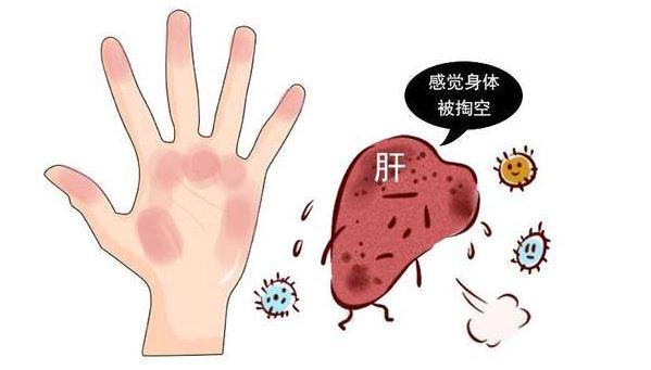 Đỏ, vàng, đen: 3 sắc thái của da trên các bộ phận này báo hiệu gan bị tổn thương, đừng bỏ qua kẻo ân hận - Ảnh 4.