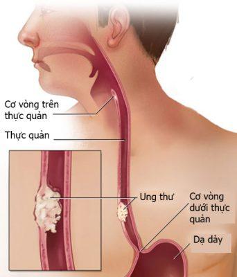 Tuyến phòng thủ đầu tiên của miệng, thực quản, dạ dày một khi bị hư hại, viêm nhiễm và ung thư đều có thể tìm đến bạn - Ảnh 3.