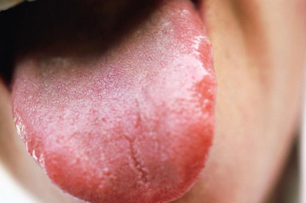 Tim bị bệnh thì lưỡi sẽ có 3 biểu hiện bất thường, nếu có dù chỉ một cái cũng nên đi khám ngay - Ảnh 3.