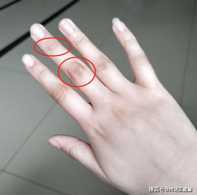 4 dấu hiệu bất thường ở ngón tay giữa cảnh báo gan đang yếu, nên đi khám ngay - Ảnh 1.