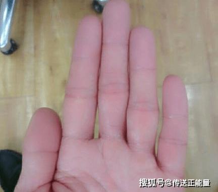 4 dấu hiệu bất thường ở ngón tay giữa cảnh báo gan đang yếu, nên đi khám ngay - Ảnh 2.