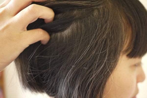 Tóc trắng mọc trên trán, thái dương và sau đầu cảnh báo điều gì? Làm được 4 việc này tóc trắng còn lâu mới xuất hiện - Ảnh 2.