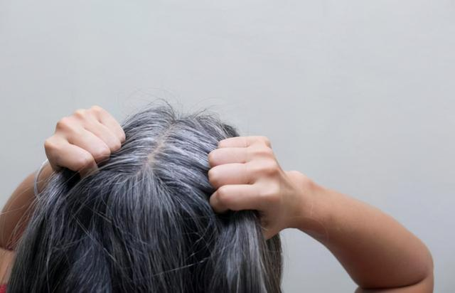 Tóc trắng mọc trên trán, thái dương và sau đầu cảnh báo điều gì? Làm được 4 việc này tóc trắng còn lâu mới xuất hiện - Ảnh 4.
