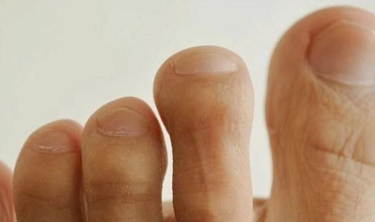 Đoán tuổi thọ thông qua bàn chân: Nếu có 4 tín hiệu nhỏ này ở chân, chứng tỏ bạn là người tuổi thọ ngắn và nhiều bệnh tật - Ảnh 2.