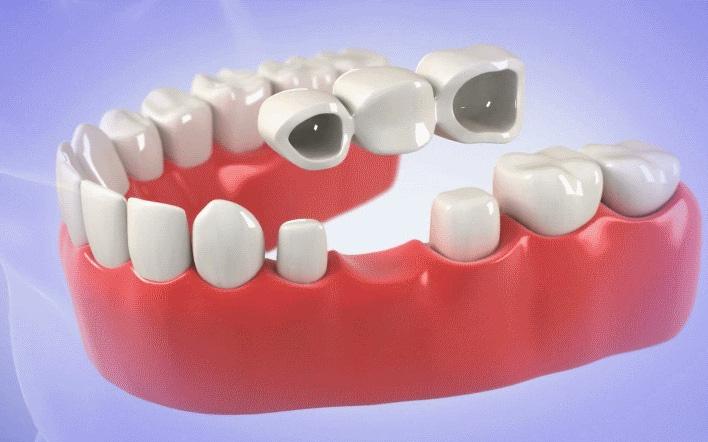 Mất răng nên trồng răng Implant hay làm cầu răng sứ?