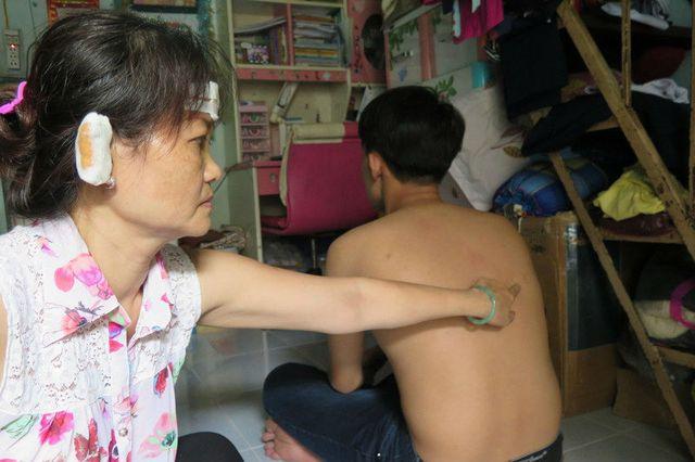 Gia đình bà Nguyễn Anh Thảo (Q.Gò Vấp) từng bị giang hồ đâm chém hơn chục lần vì dính đến tín dụng đen