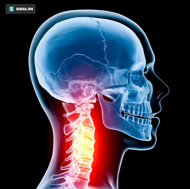 Cột sống cổ có vai trò không thể thay thế đối với sức khỏe cơ thể. (Ảnh minh họa).